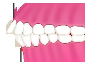 出っ歯/上顎前突(じょうがくぜんとつ)