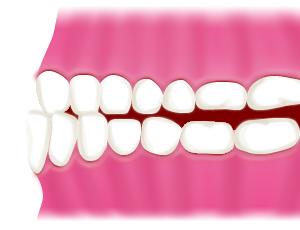 受け口/下顎前突(かがくぜんとつ)、反対咬合(はんたいこうごう)