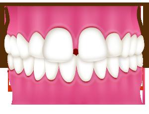すきっ歯/空隙歯列(くうげきしれつ)