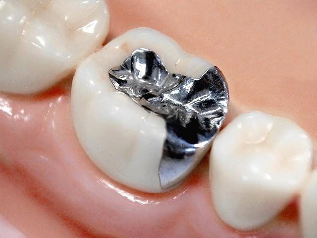 銀歯を目立たなくすることはできますか?