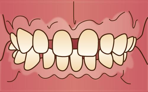 すきっ歯(正中離開、空隙歯列)