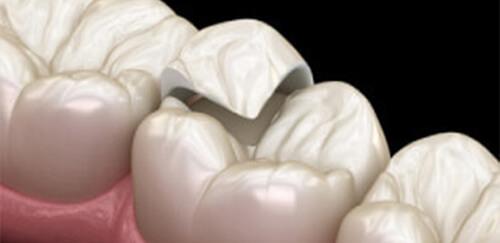 銀歯の詰め物を白い歯に セラミック治療(インレー)