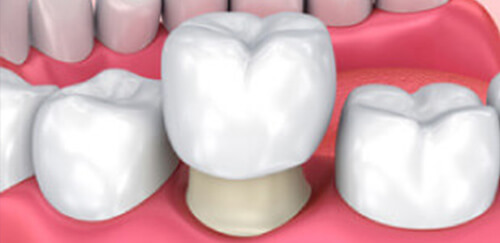 黒ずんだ差し歯を透明感のある歯に セラミック治療(クラウン)