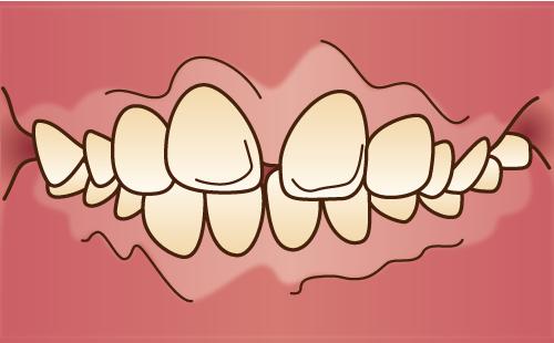 出っ歯を治したい