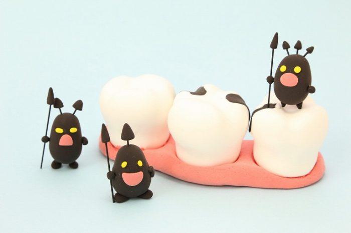 虫歯や歯周病の原因に